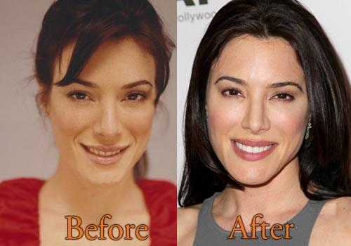 Jaime Murray Plastic Surgery