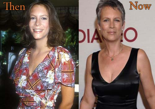 Jamie Lee Curtis Botox