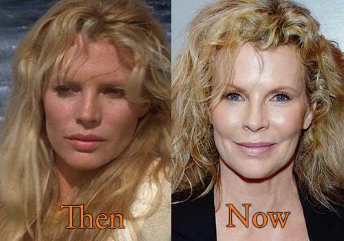 Kim Basinger Plastic Surgery Picture