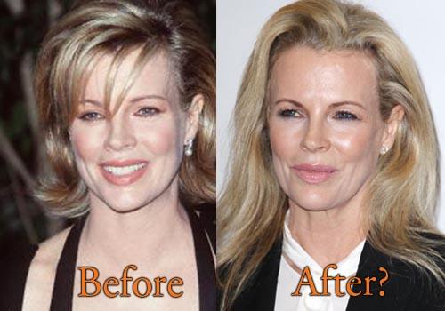 Kim Basinger Plastic Surgery