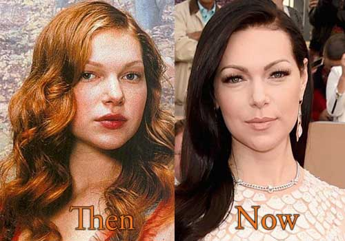 Laura Prepon Plastic Surgery Picture