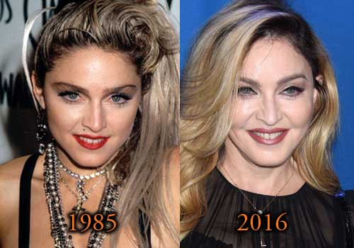 Madonna Plastic Surgery Picture Before After