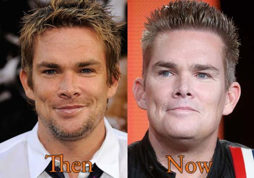 Mark McGrath Plastic Surgery Picture
