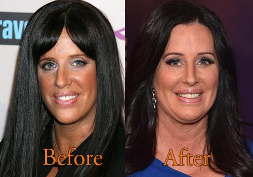 Patti Stanger Plastic Surgery Picture