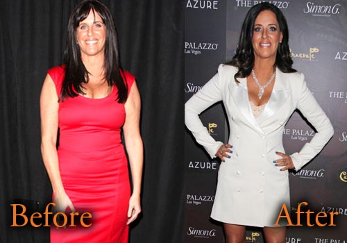 Patti Stanger Plastic Surgery