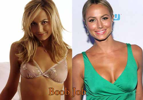 Stacy Keibler Plastic Surgery Boob Job