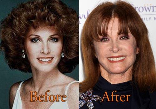 Stephanie Powers Plastic Surgery