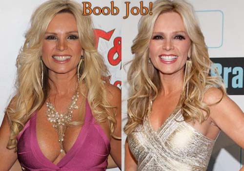 Tamra Barney Breast Implants