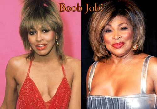 Tina Turner Breast Implants