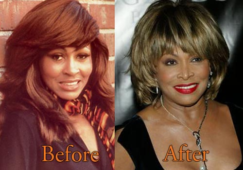 Tina Turner Plastic Surgery Before And After Botox Boob Job
