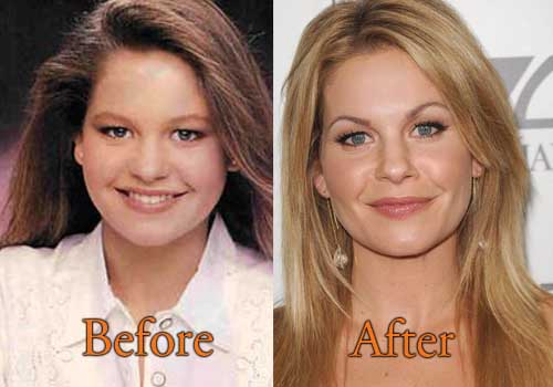 Candace Cameron Plastic Surgery Picture