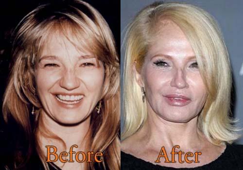 Ellen Barkin Plastic Surgery