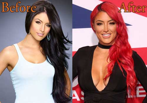 Eva Marie Plastic Surgery Breast Implants