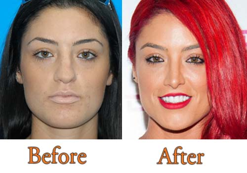 Eva Marie Plastic Surgery Nose Job