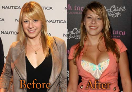 Jodie Sweetin Plastic Surgery Boob Job