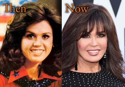 Marie Osmond Plastic Surgery Botox