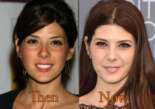 Marisa Tomei Plastic Surgery Picture