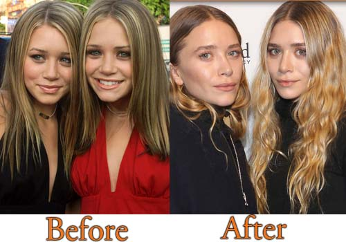 Mary-Kate Plastic Surgery and Ashley Olsen Plastic Surgery Picture