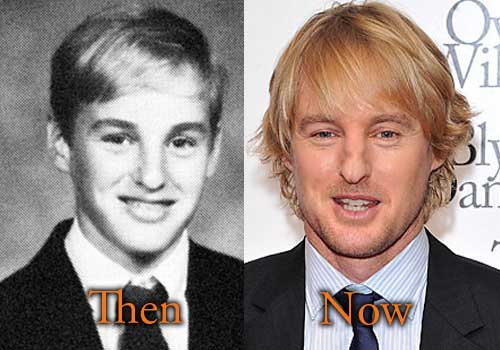 Owen Wilson Broken Nose