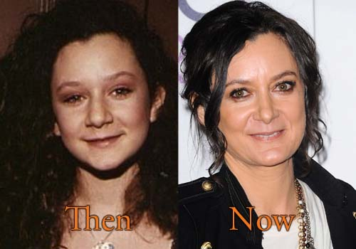 Sara Gilbert Plastic Surgery Picture