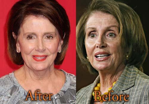 Nancy Pelosi Plastic Surgery Facelift