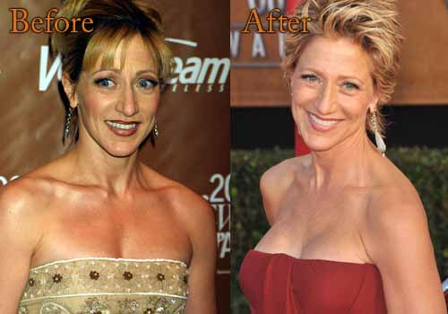 Edie Falco Plastic Surgery Boob Job
