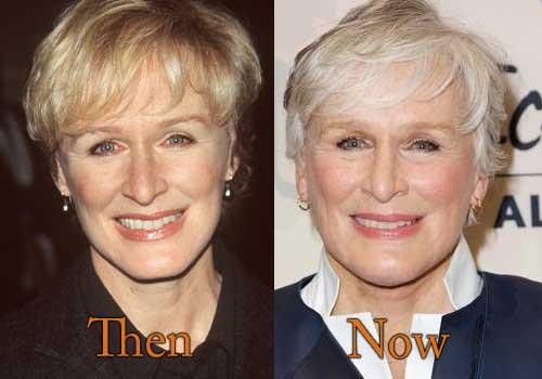 Glenn Close Plastic Surgery Botox