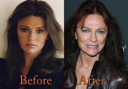 Jacqueline Bisset Plastic Surgery