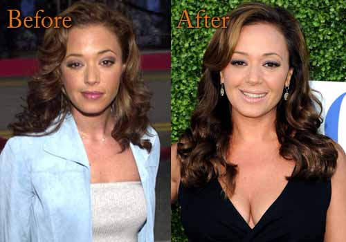 Leah Remini Plastic Surgery Boob Job