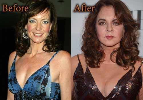 Stockard Channing Plastic Surgery Breast Implants