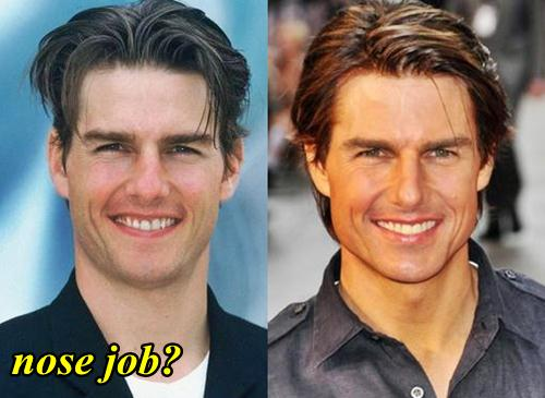Tom-Cruise-Nose-Job