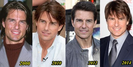 Tom Cruise S Alleged Plastic Surgery Before And After