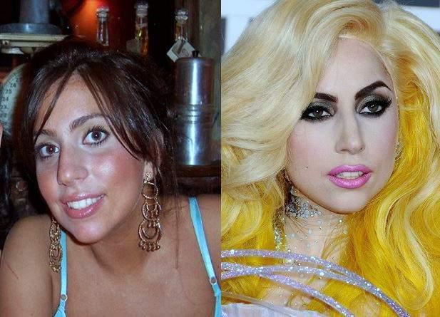 lady-gaga-plastic-surgery-botox