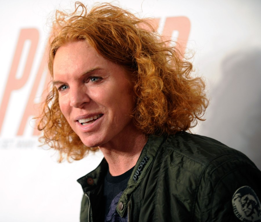 Carrot Top S Before And After Plastic Surgery Photos Top