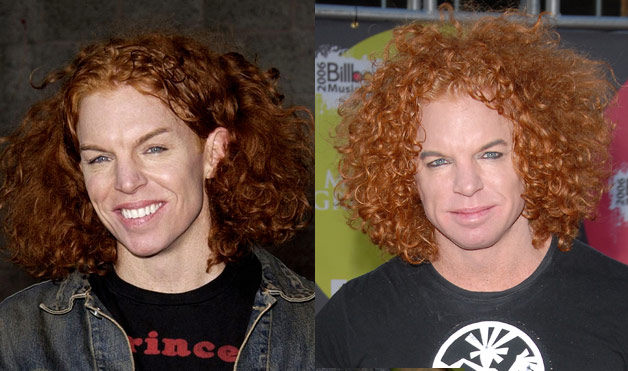 Carrot Top S Before And After Plastic Surgery Photos Top Celebrity