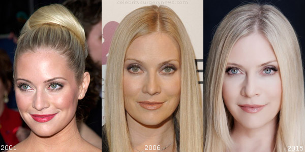 Emily Procter Plastic Surgery Speculation Top Celebrity